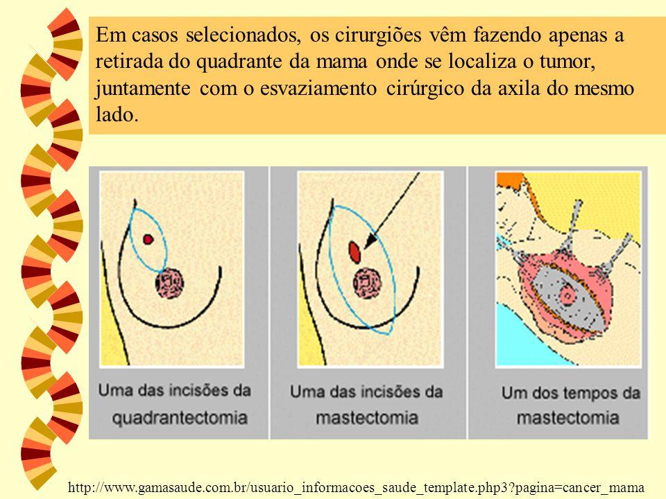 Em casos selecionados, os cirurgiões vêm fazendo apenas a retirada do quadrante da mama onde se localiza o tumor, juntamente com o esvaziamento cirúrg