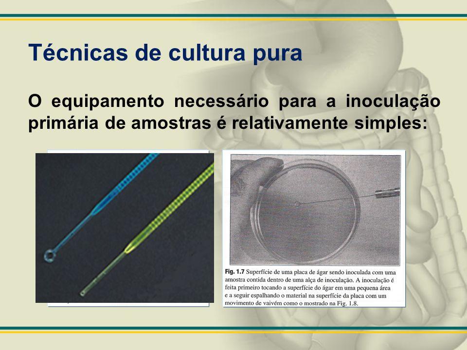 Técnicas de cultura pura O equipamento necessário para a inoculação primária de amostras é relativamente simples: