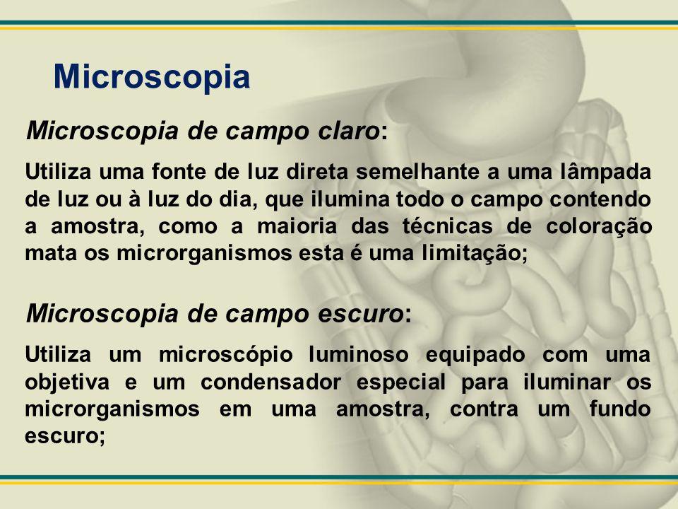 Microscopia Microscopia de campo claro: Utiliza uma fonte de luz direta semelhante a uma lâmpada de luz ou à luz do dia, que ilumina todo o campo cont
