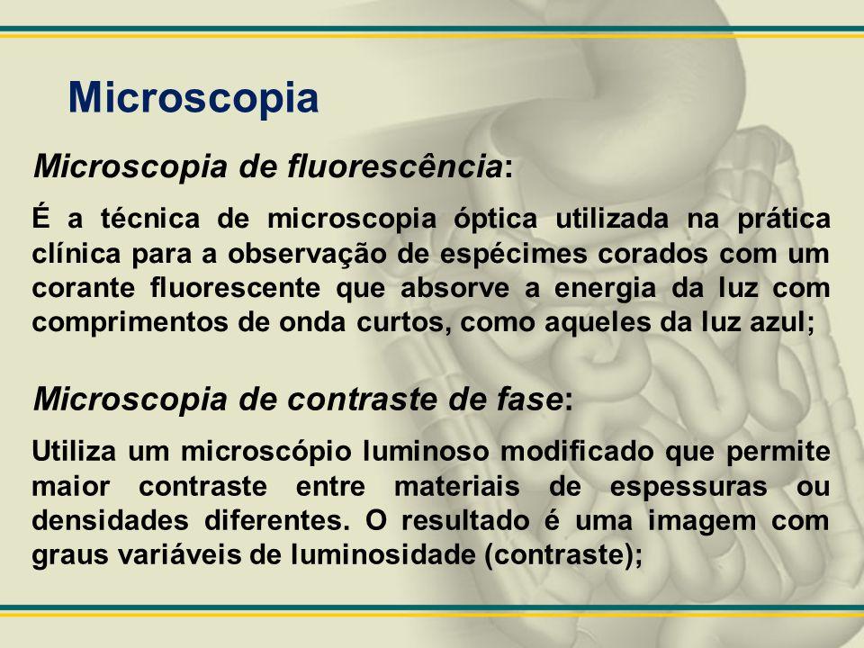 Microscopia Microscopia de fluorescência: É a técnica de microscopia óptica utilizada na prática clínica para a observação de espécimes corados com um
