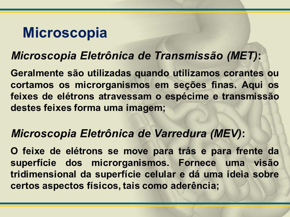 Microscopia Microscopia Eletrônica de Transmissão (MET): Geralmente são utilizadas quando utilizamos corantes ou cortamos os microrganismos em seções