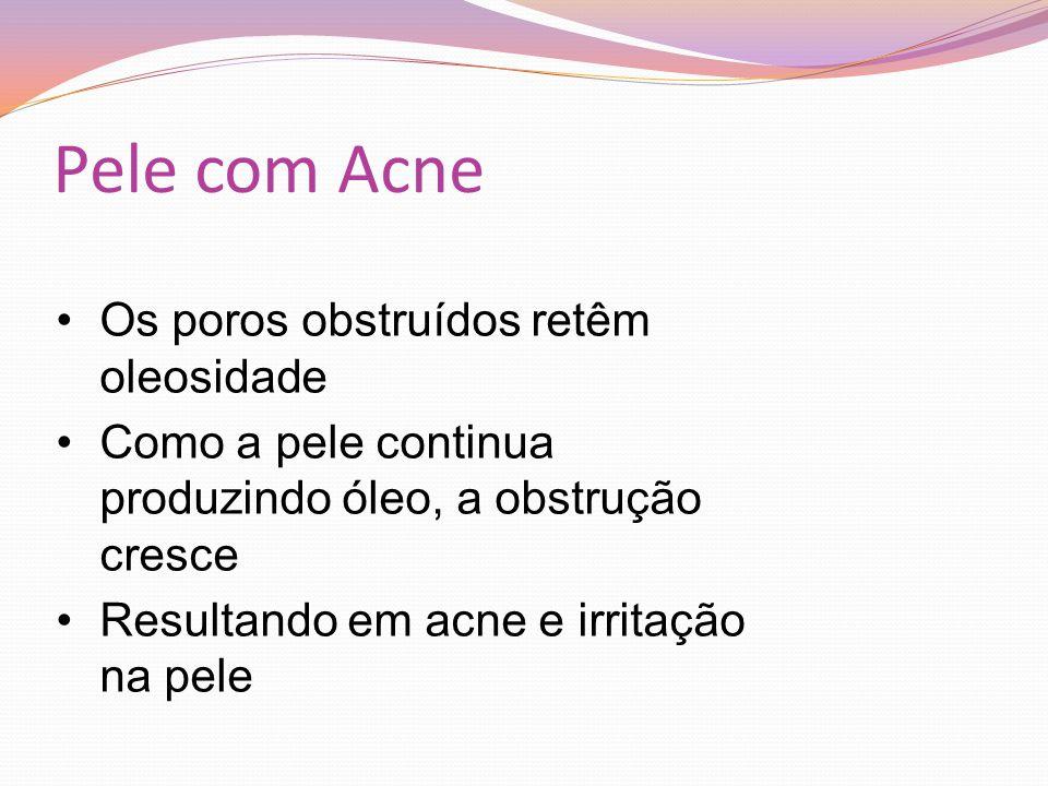 Pele com Acne Os poros obstruídos retêm oleosidade Como a pele continua produzindo óleo, a obstrução cresce Resultando em acne e irritação na pele