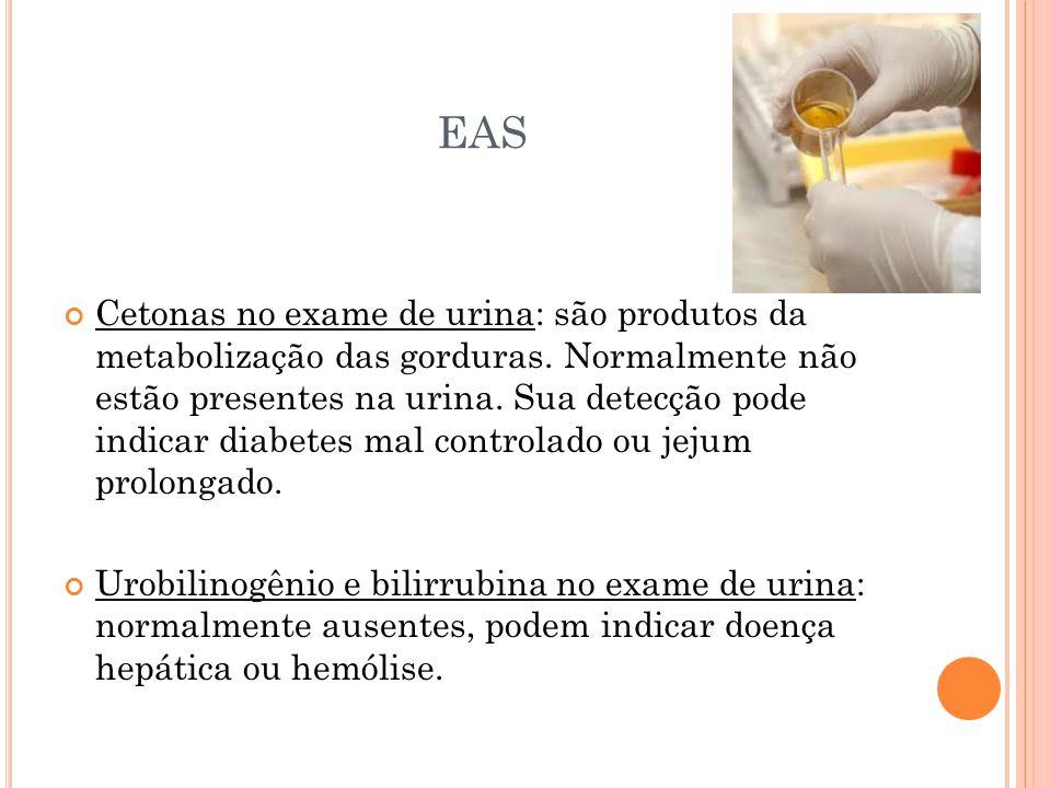 EAS Cetonas no exame de urina: são produtos da metabolização das gorduras. Normalmente não estão presentes na urina. Sua detecção pode indicar diabete