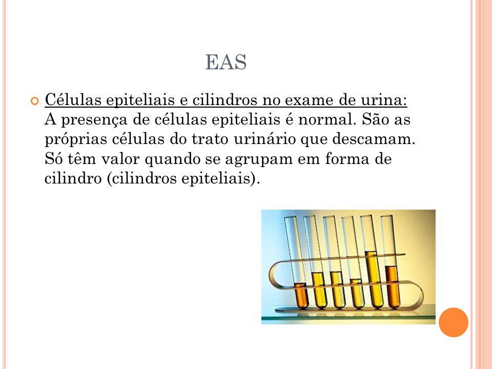 EAS Células epiteliais e cilindros no exame de urina: A presença de células epiteliais é normal. São as próprias células do trato urinário que descama