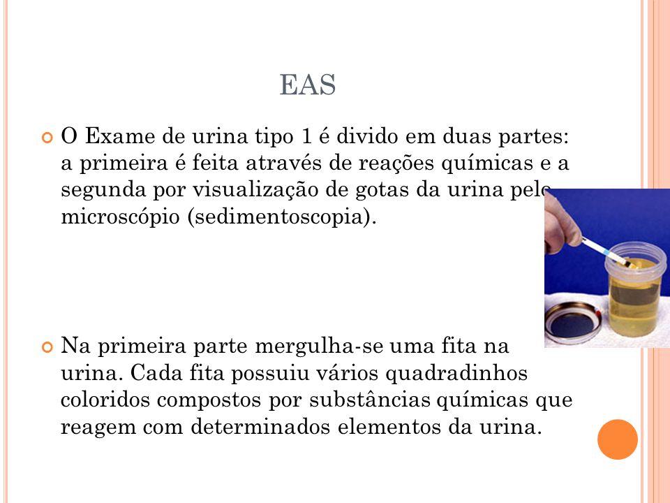 REFERÊNCIAS http://www.saudecominteligencia.com.br/exame- de-urina.htm http://diariodebiologia.com/2009/06/como- interpretar-um-exame-de-urina-rotina-eas/ http://www.ceaclin.com.br/exames/urina_element os_anormais.shtml http://www.infoescola.com/exames- medicos/urinalise/