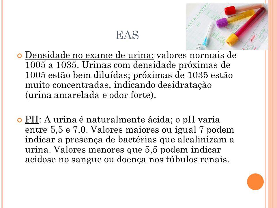 EAS Densidade no exame de urina: valores normais de 1005 a 1035. Urinas com densidade próximas de 1005 estão bem diluídas; próximas de 1035 estão muit