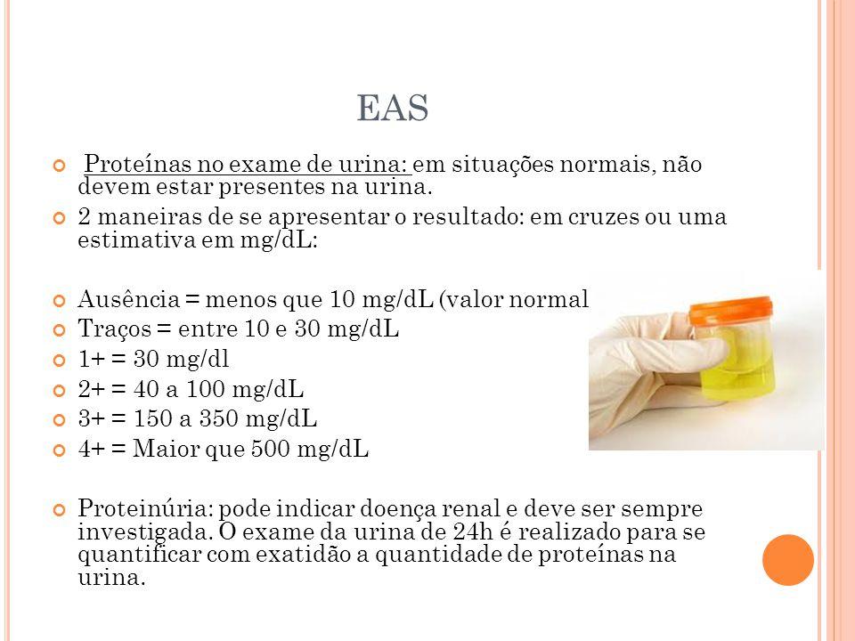 EAS Proteínas no exame de urina: em situações normais, não devem estar presentes na urina. 2 maneiras de se apresentar o resultado: em cruzes ou uma e