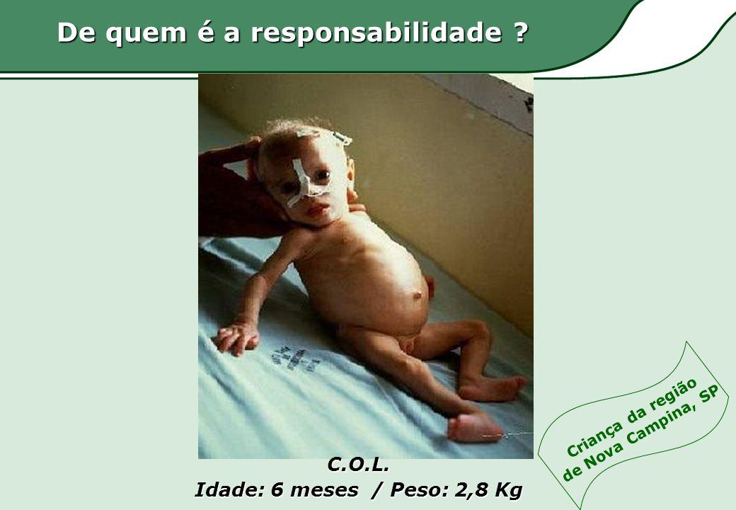 C.O.L. Idade: 6 meses / Peso: 2,8 Kg De quem é a responsabilidade ? Criança da região de Nova Campina, SP