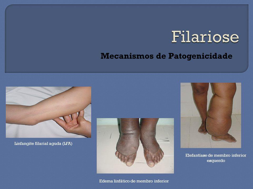 Mecanismos de Patogenicidade Edema linfático de membro inferior Linfangite filarial aguda (LFA) Elefantíase de membro inferior esquerdo