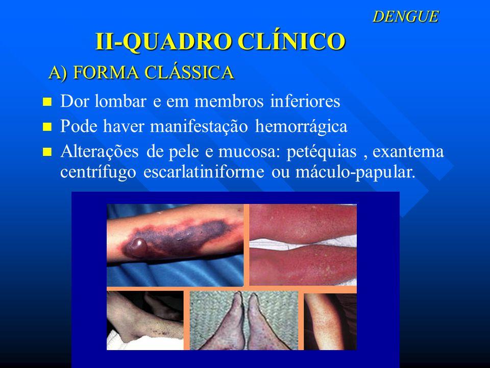 DENGUE II-QUADRO CLÍNICO A) FORMA CLÁSSICA DENGUE II-QUADRO CLÍNICO A) FORMA CLÁSSICA Dor lombar e em membros inferiores Pode haver manifestação hemor