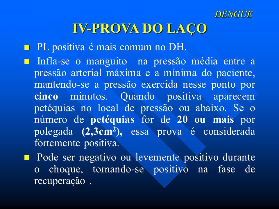 DENGUE IV-PROVA DO LAÇO DENGUE IV-PROVA DO LAÇO PL positiva é mais comum no DH. Infla-se o manguito na pressão média entre a pressão arterial máxima e