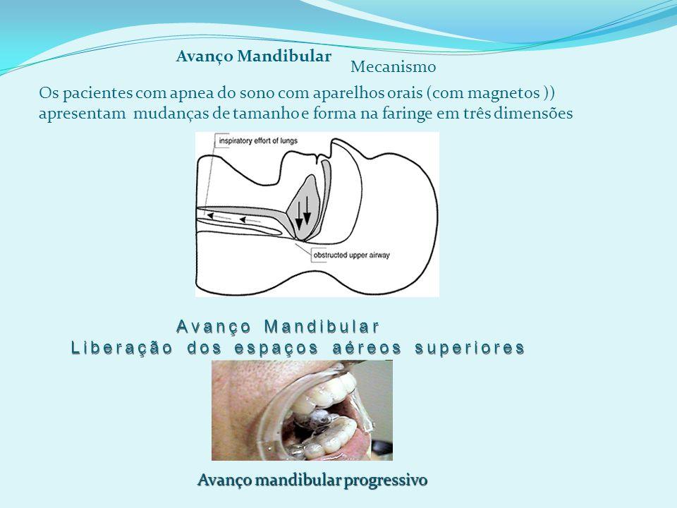 Os pacientes com apnea do sono com aparelhos orais (com magnetos )) apresentam mudanças de tamanho e forma na faringe em três dimensões Avanço Mandibular Mecanismo Avanço Mandibular Liberação dos espaços aéreos superiores Avanço mandibular progressivo