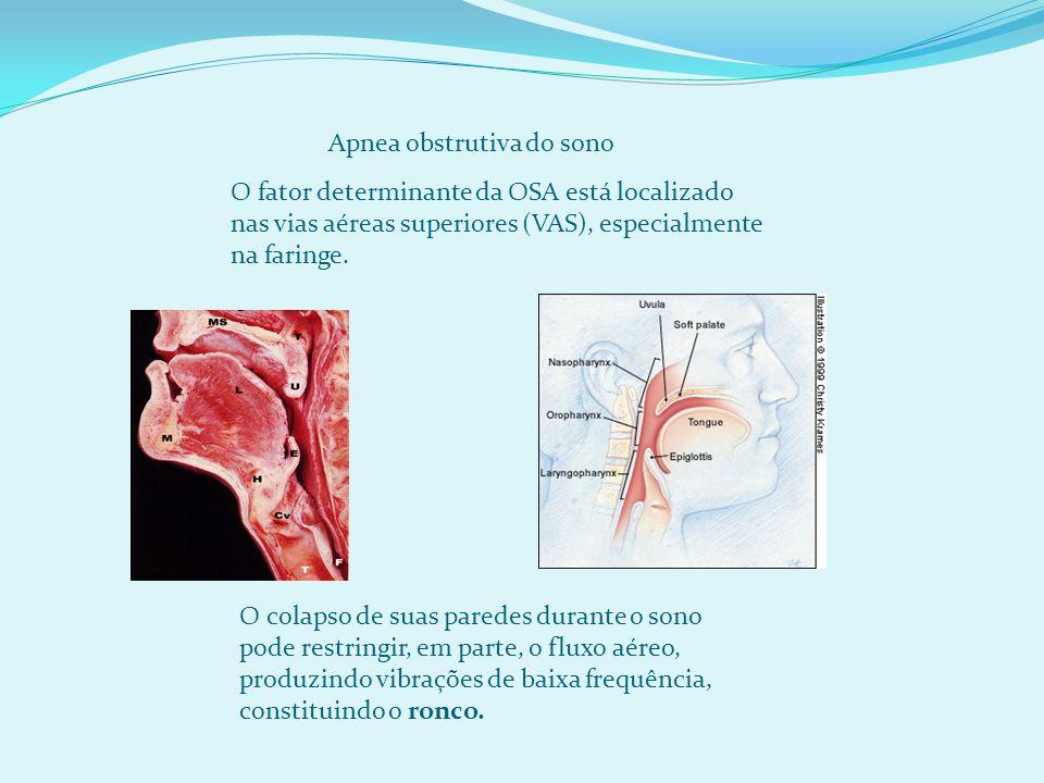O fator determinante da OSA está localizado nas vias aéreas superiores (VAS), especialmente na faringe.