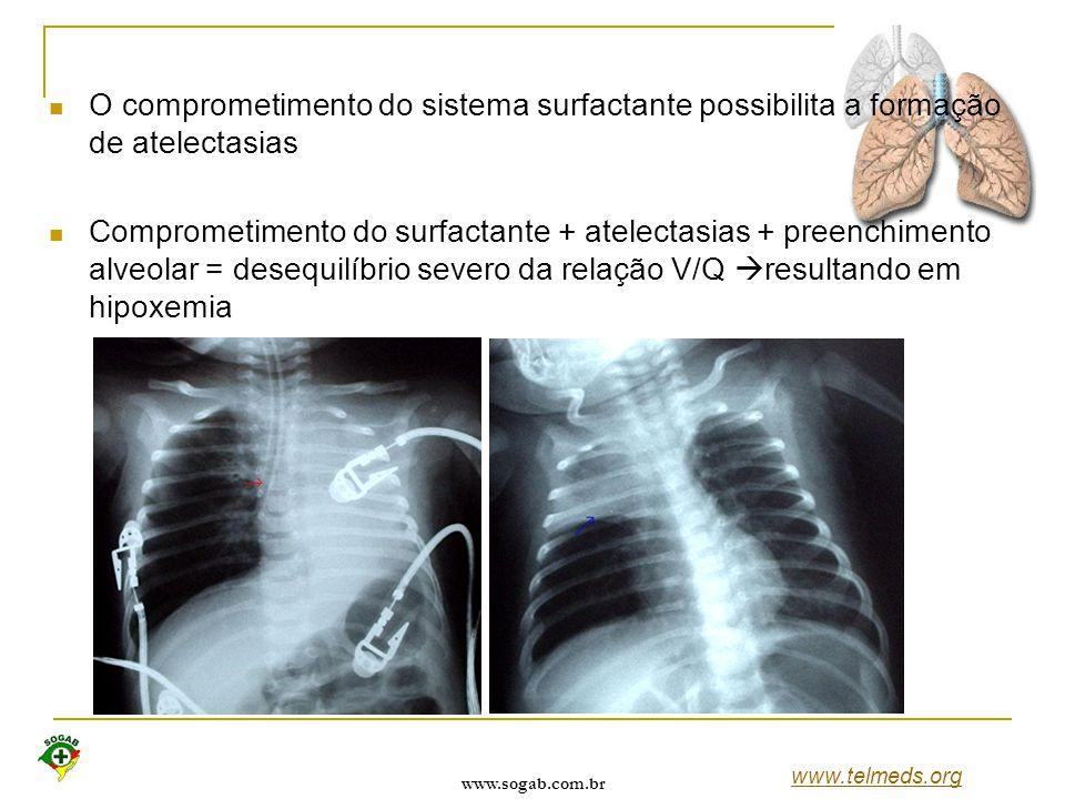 www.sogab.com.br O comprometimento do sistema surfactante possibilita a formação de atelectasias Comprometimento do surfactante + atelectasias + preen