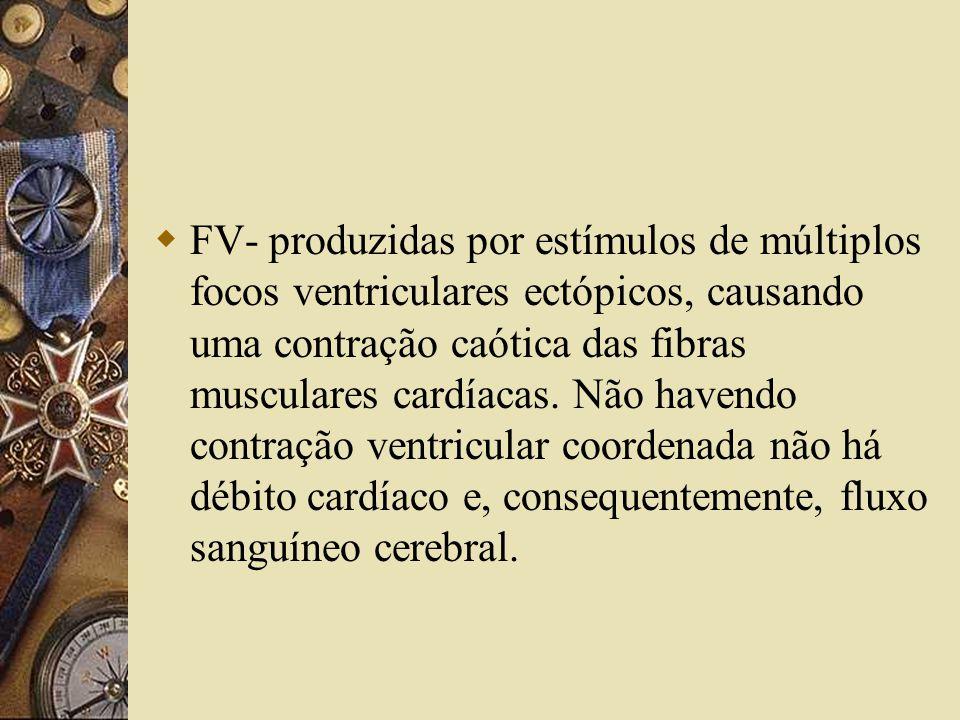  FV- produzidas por estímulos de múltiplos focos ventriculares ectópicos, causando uma contração caótica das fibras musculares cardíacas.