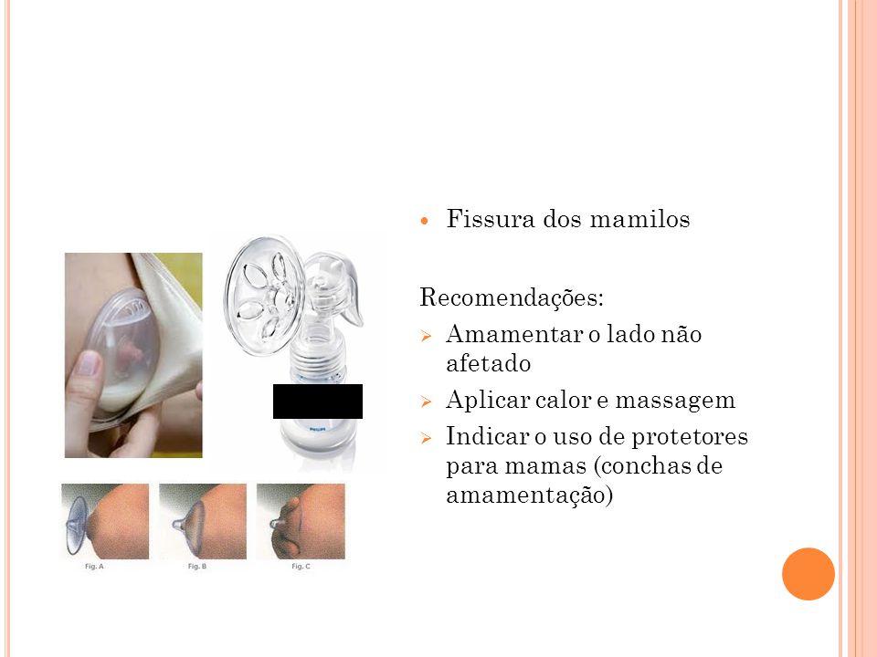 Fissura dos mamilos Recomendações:  Amamentar o lado não afetado  Aplicar calor e massagem  Indicar o uso de protetores para mamas (conchas de amam