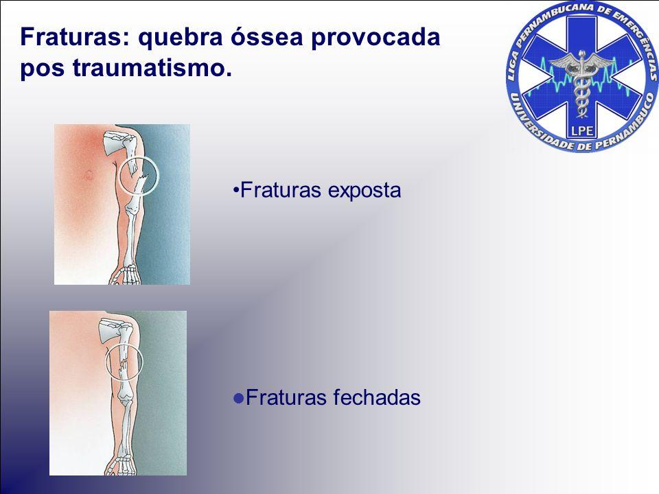 Fraturas exposta Fraturas fechadas Fraturas: quebra óssea provocada pos traumatismo.