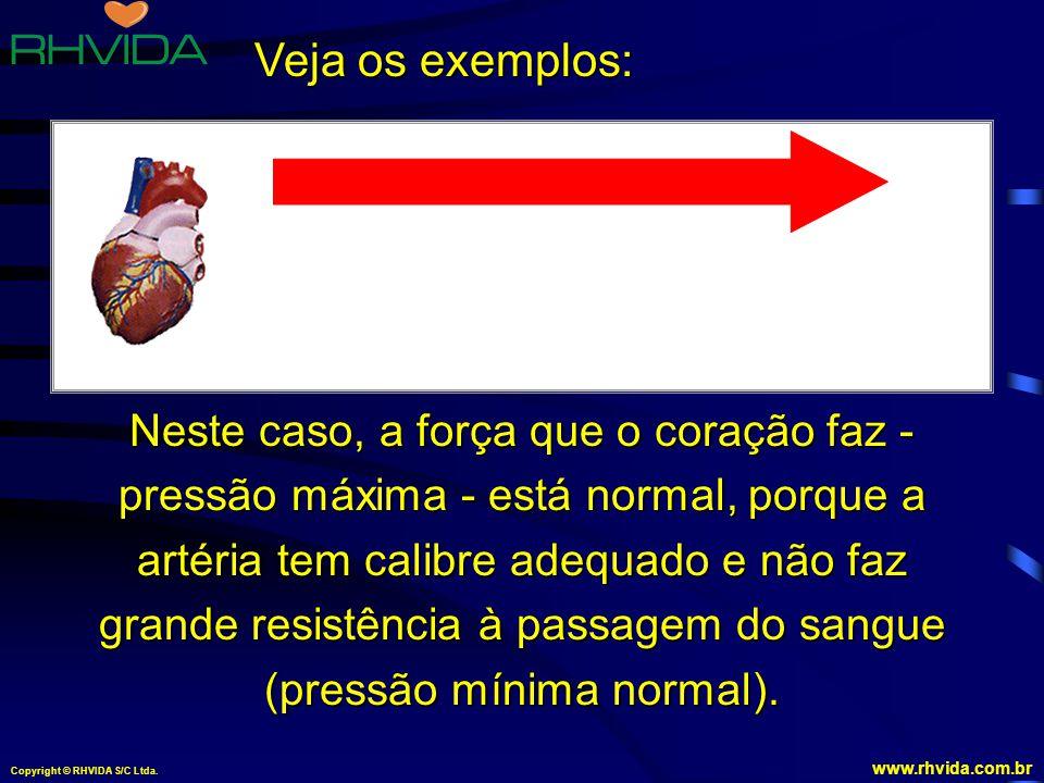 Copyright © RHVIDA S/C Ltda.www.rhvida.com.br Artéria com calibre normal.