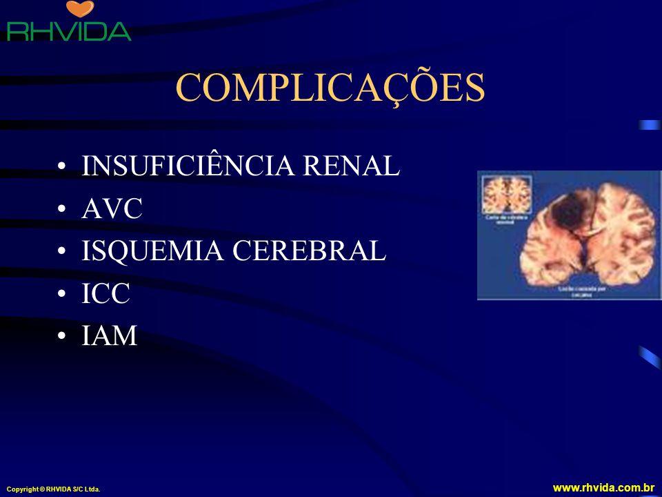 Copyright © RHVIDA S/C Ltda. www.rhvida.com.br COMPLICAÇÕES INSUFICIÊNCIA RENAL AVC ISQUEMIA CEREBRAL ICC IAM
