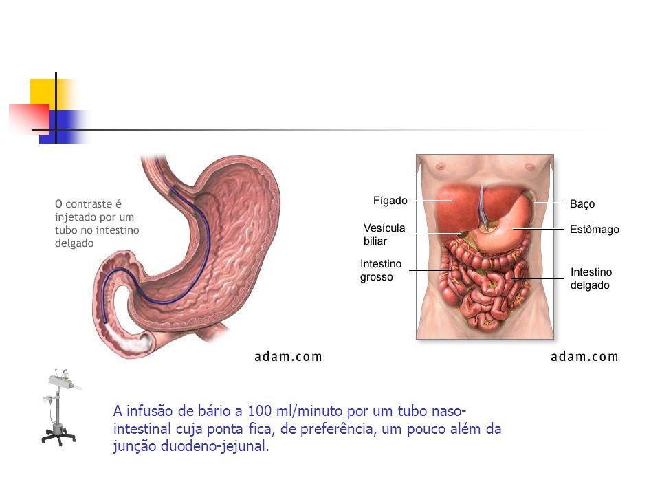 A infusão de bário a 100 ml/minuto por um tubo naso- intestinal cuja ponta fica, de preferência, um pouco além da junção duodeno-jejunal.
