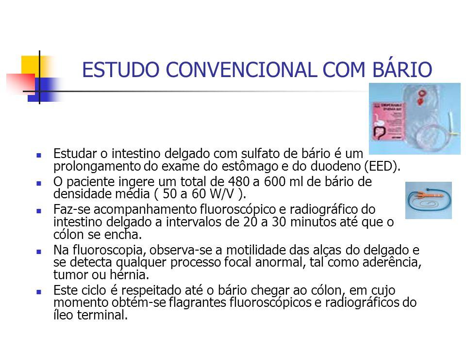 ESTUDO CONVENCIONAL COM BÁRIO Estudar o intestino delgado com sulfato de bário é um prolongamento do exame do estômago e do duodeno (EED).