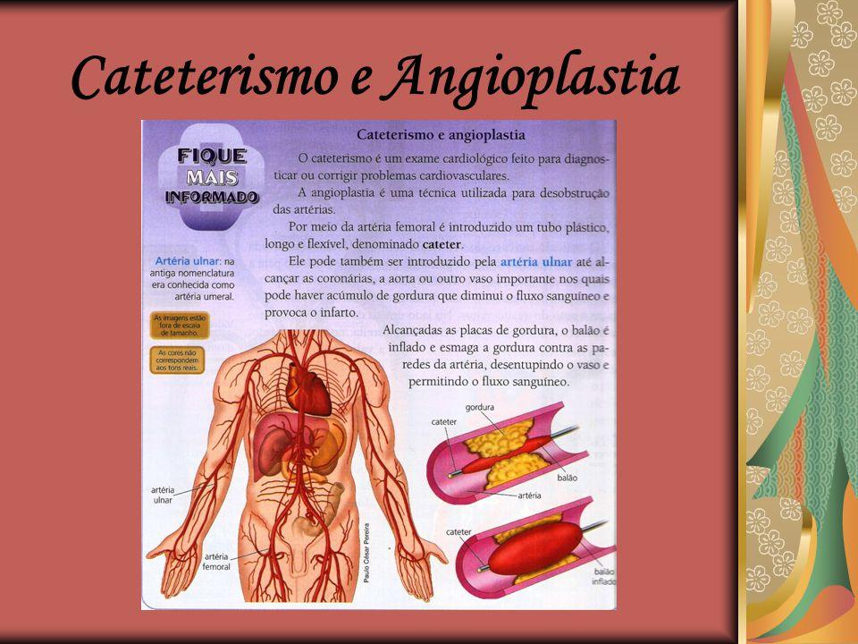 Grupos sanguíneos  O sistema ABO de classificação sanguínea foi estabelecida por Landsteiner. De acordo com esse sistema, o sangue pode ser classific