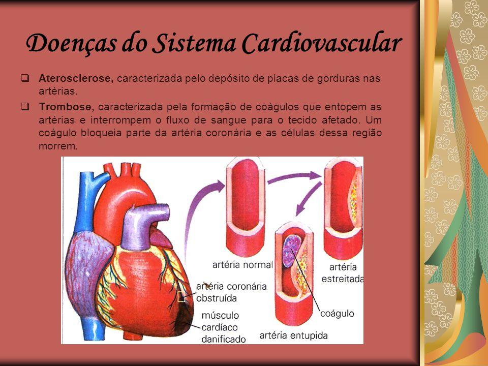 """Doenças do Sistema Cardiovascular  Hipertensão ou """"pressão alta"""", caracterizada subida anormal da pressão arterial, causa diversos problemas ao coraç"""