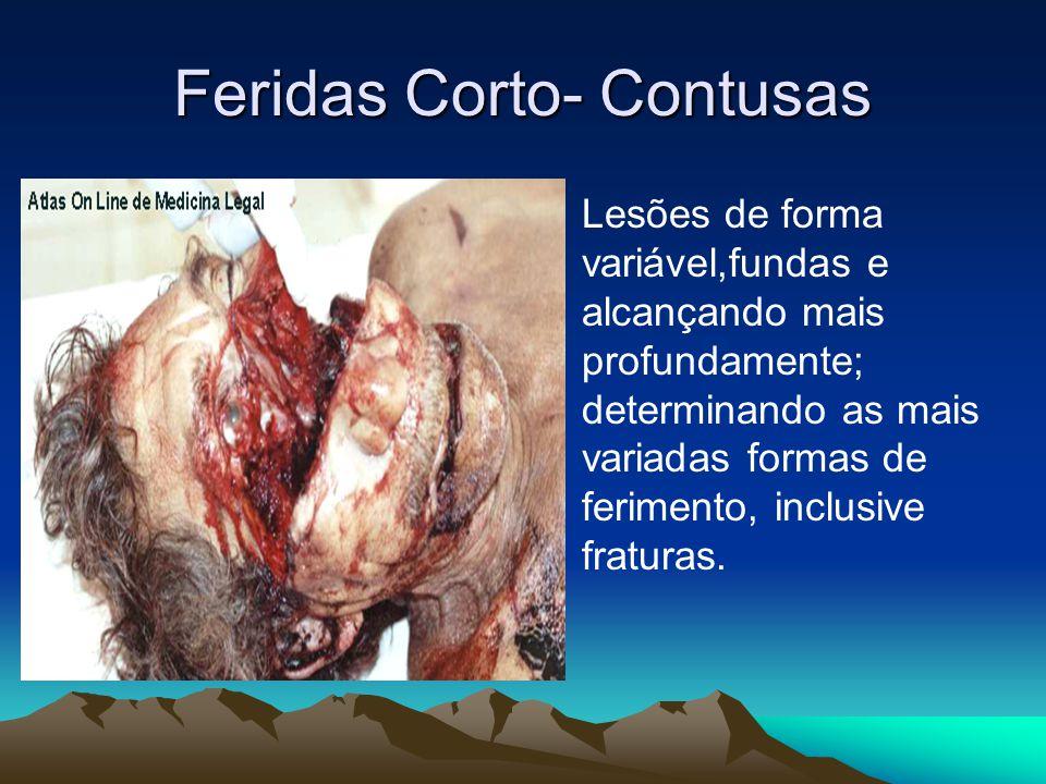 Feridas Corto- Contusas Lesões de forma variável,fundas e alcançando mais profundamente; determinando as mais variadas formas de ferimento, inclusive