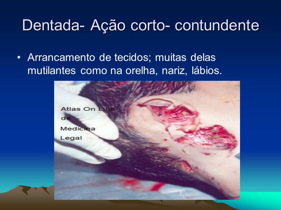 Dentada- Ação corto- contundente Arrancamento de tecidos; muitas delas mutilantes como na orelha, nariz, lábios.
