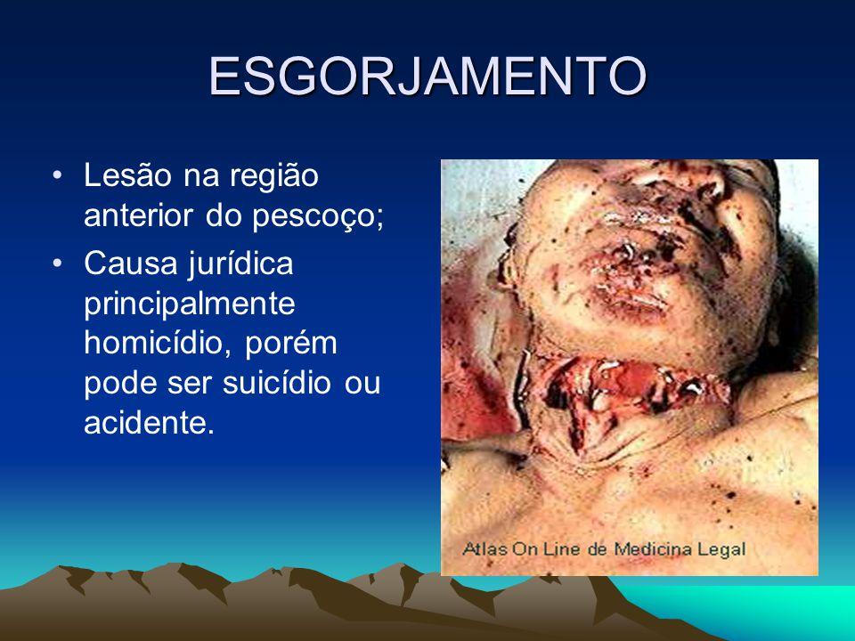 ESGORJAMENTO Lesão na região anterior do pescoço; Causa jurídica principalmente homicídio, porém pode ser suicídio ou acidente.