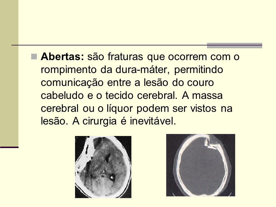 Abertas: são fraturas que ocorrem com o rompimento da dura-máter, permitindo comunicação entre a lesão do couro cabeludo e o tecido cerebral. A massa