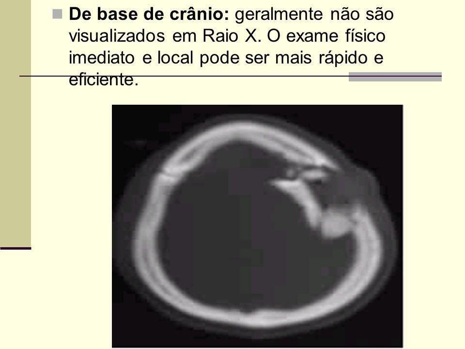 De base de crânio: geralmente não são visualizados em Raio X. O exame físico imediato e local pode ser mais rápido e eficiente.