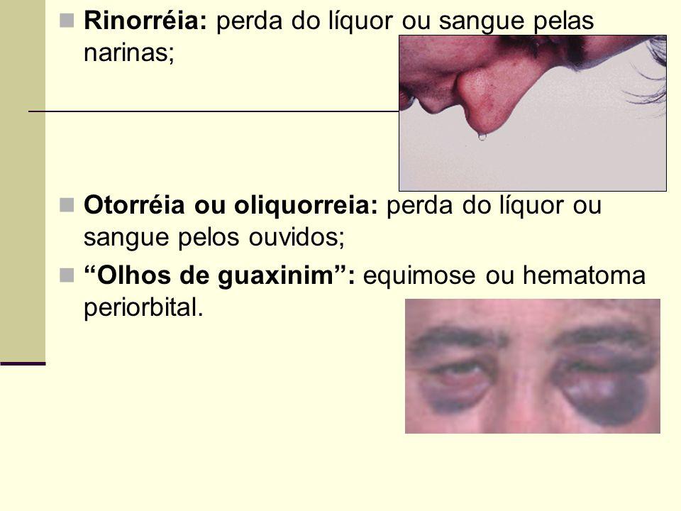 """Rinorréia: perda do líquor ou sangue pelas narinas; Otorréia ou oliquorreia: perda do líquor ou sangue pelos ouvidos; """"Olhos de guaxinim"""": equimose ou"""
