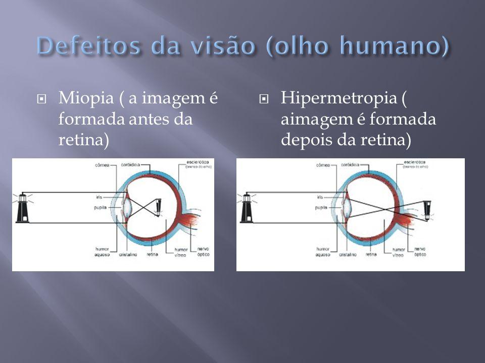  Miopia ( a imagem é formada antes da retina)  Hipermetropia ( aimagem é formada depois da retina)
