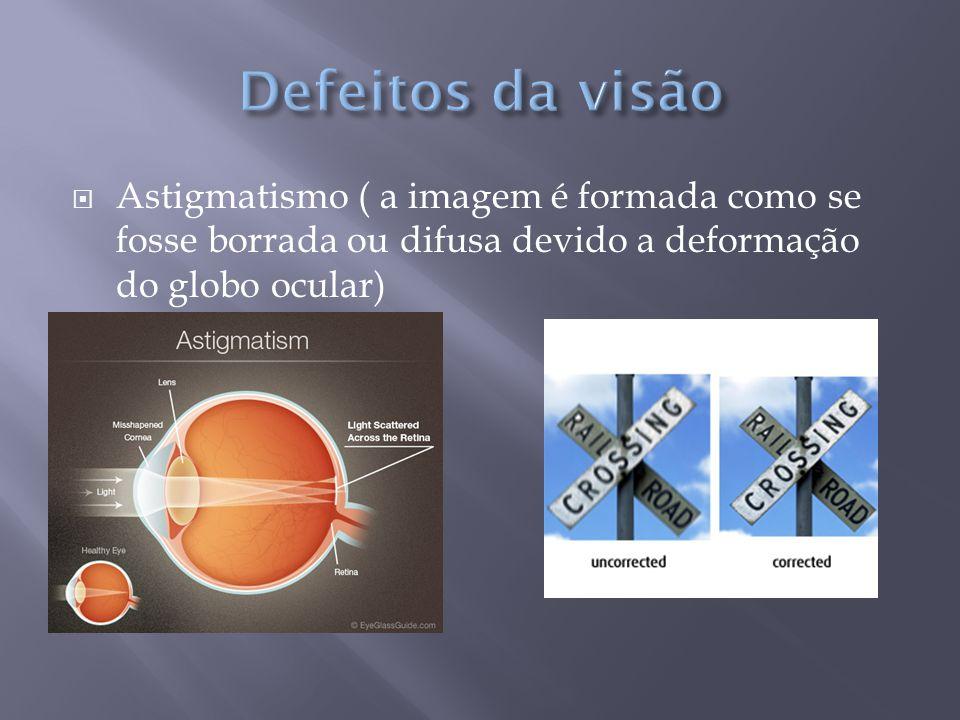  Astigmatismo ( a imagem é formada como se fosse borrada ou difusa devido a deformação do globo ocular)