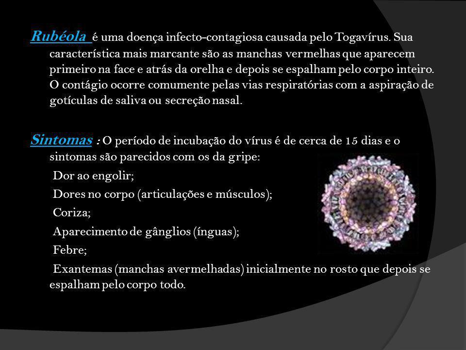Rubéola é uma doença infecto-contagiosa causada pelo Togavírus.