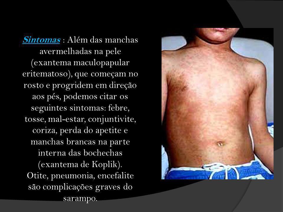 Sintomas : Além das manchas avermelhadas na pele (exantema maculopapular eritematoso), que começam no rosto e progridem em direção aos pés, podemos ci