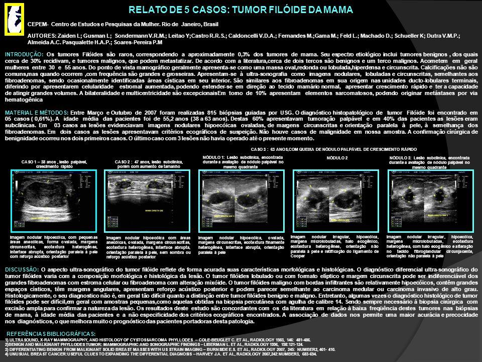RELATO DE 5 CASOS: TUMOR FILÓIDE DA MAMA INTRODUÇÃO: Os tumores Filóides são raros, correspondendo a aproximadamente 0,3% dos tumores de mama. Seu esp