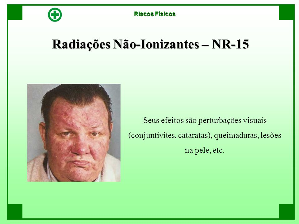 Radiações Não-Ionizantes – NR-15 Seus efeitos são perturbações visuais (conjuntivites, cataratas), queimaduras, lesões na pele, etc. Riscos Físicos