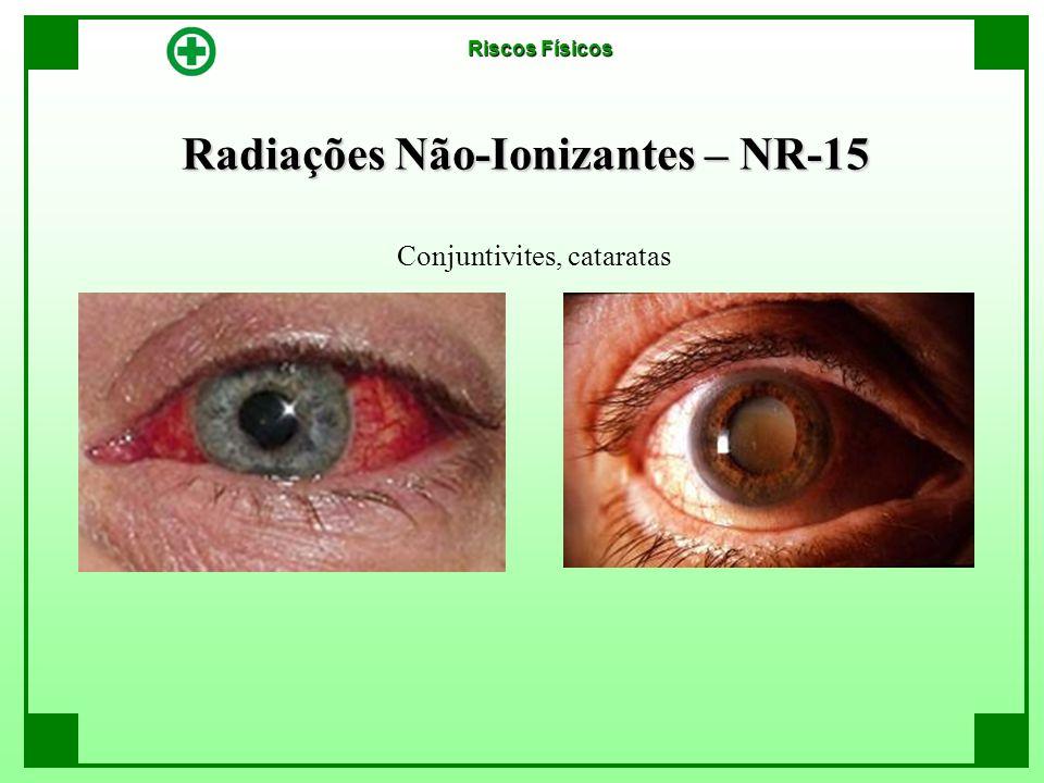 Radiações Não-Ionizantes – NR-15 Conjuntivites, cataratas Riscos Físicos