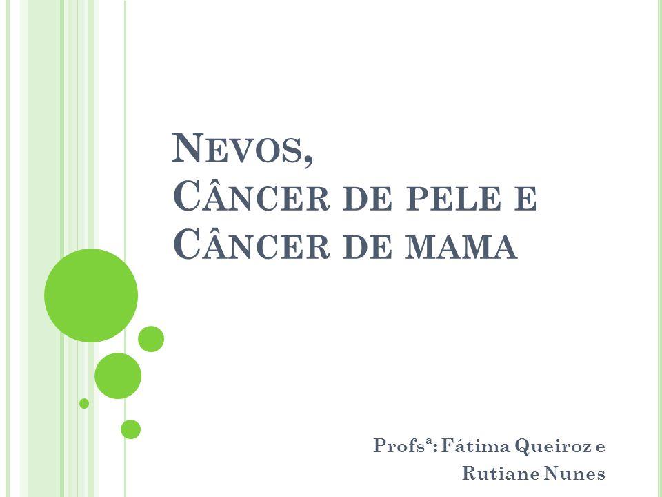 N EVOS, C ÂNCER DE PELE E C ÂNCER DE MAMA Profsª: Fátima Queiroz e Rutiane Nunes