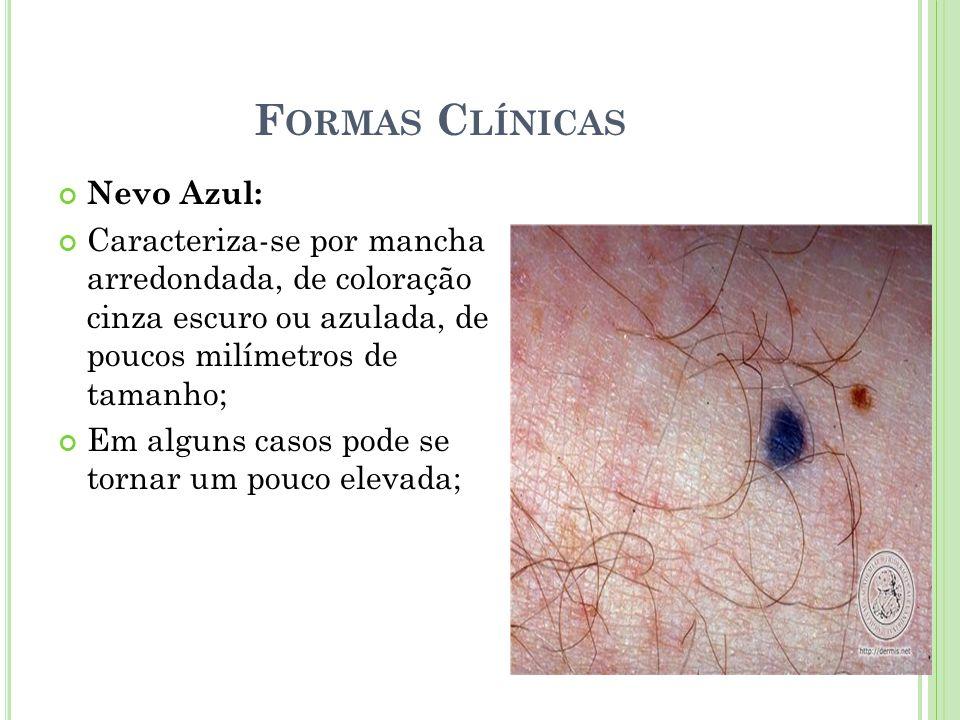 F ORMAS C LÍNICAS Nevo Azul: Caracteriza-se por mancha arredondada, de coloração cinza escuro ou azulada, de poucos milímetros de tamanho; Em alguns c