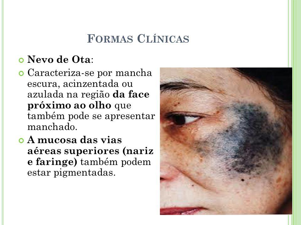 F ORMAS C LÍNICAS Nevo de Ota : Caracteriza-se por mancha escura, acinzentada ou azulada na região da face próximo ao olho que também pode se apresent