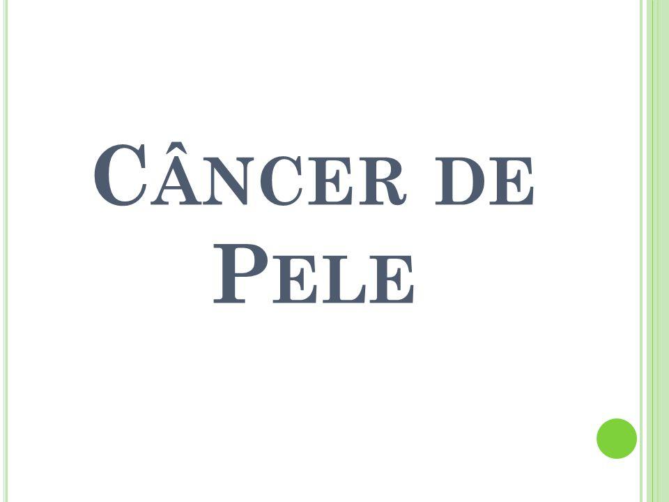 C ÂNCER DE P ELE
