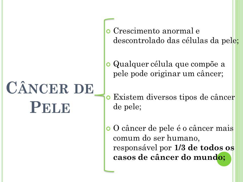 Crescimento anormal e descontrolado das células da pele; Qualquer célula que compõe a pele pode originar um câncer; Existem diversos tipos de câncer d
