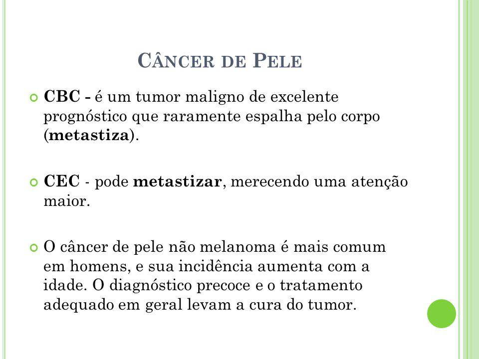 C ÂNCER DE P ELE CBC - é um tumor maligno de excelente prognóstico que raramente espalha pelo corpo ( metastiza ). CEC - pode metastizar, merecendo um