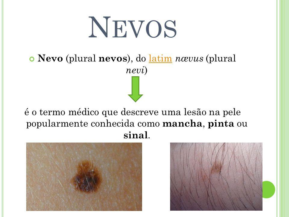 N EVOS Nevo (plural nevos ), do latim nævus (plural nevi )latim é o termo médico que descreve uma lesão na pele popularmente conhecida como mancha, pi
