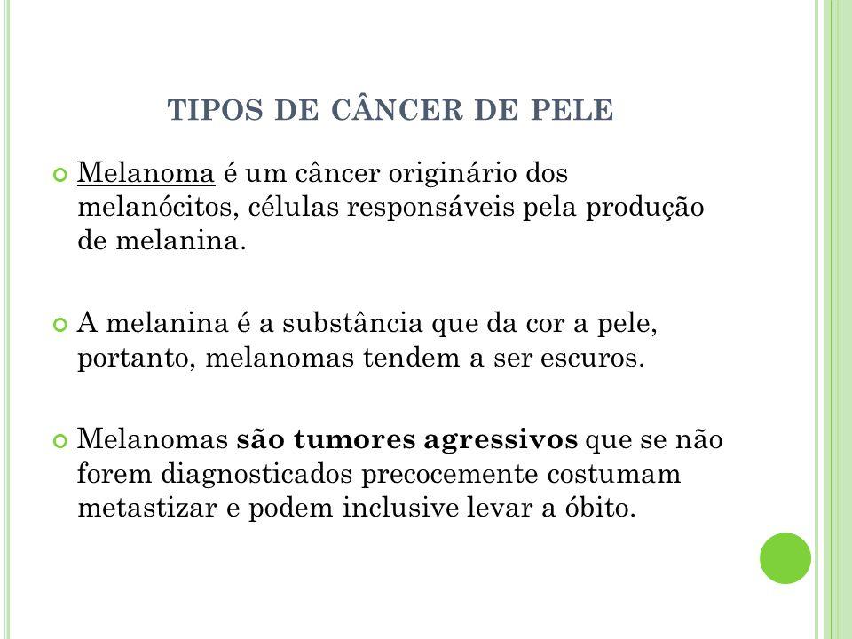 TIPOS DE CÂNCER DE PELE Melanoma é um câncer originário dos melanócitos, células responsáveis pela produção de melanina. A melanina é a substância que