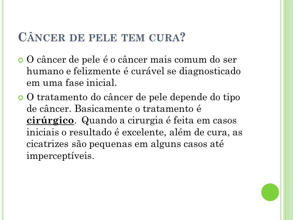 C ÂNCER DE PELE TEM CURA ? O câncer de pele é o câncer mais comum do ser humano e felizmente é curável se diagnosticado em uma fase inicial. O tratame