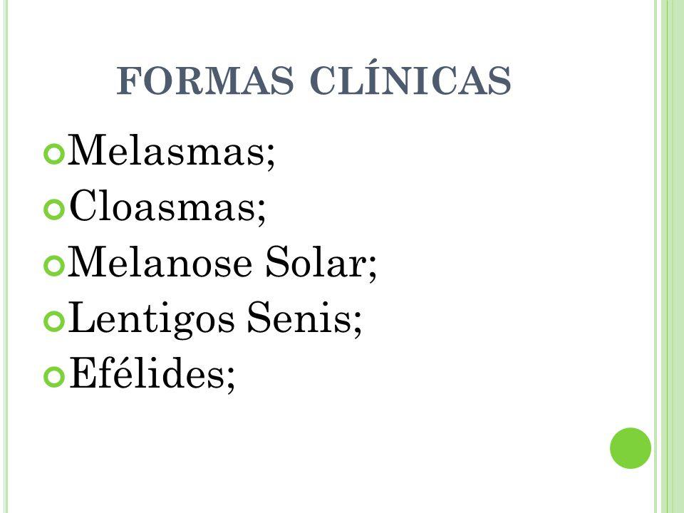 FORMAS CLÍNICAS Melasmas; Cloasmas; Melanose Solar; Lentigos Senis; Efélides;